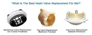 best-heart-valve-replacement-1
